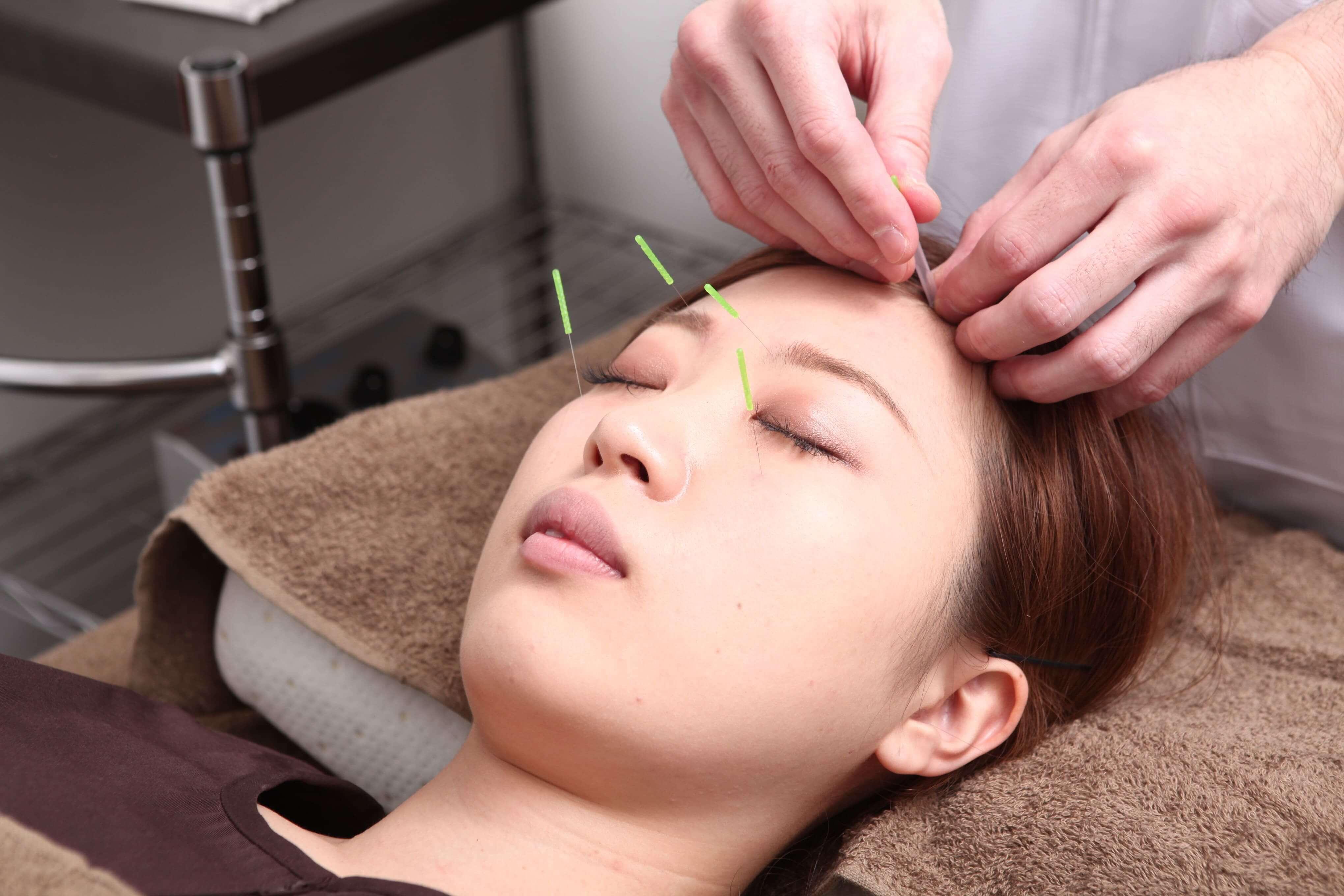 施術メニュー:美顔鍼灸